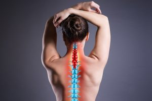 back of woman with illustrated spondyloarthritis